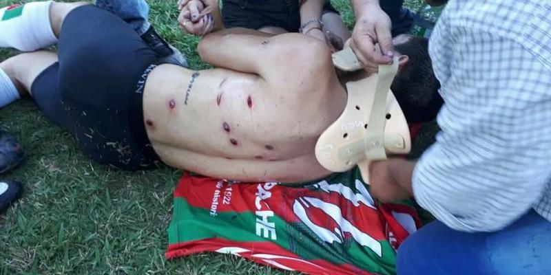 Fuerte represión en la final de la Liga Cañadense de Futbol.
